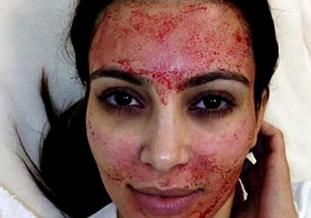 kim-kardashian-vampire-facelift