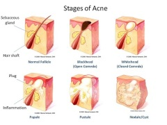 Stages-of-Acne-best-acne-treatment